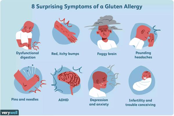 アレルギー グルテン